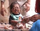 """Thanh niên mắc kẹt trong hình hài cậu bé 1 tuổi được tôn vinh như """"Thánh sống"""""""