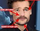 """Khuôn mặt """"chuẩn soái ca"""": Tiết lộ bất ngờ từ bác sĩ thẩm mỹ"""