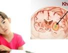 Ung thư não - Nguyên nhân tử vong hàng đầu ở các bệnh nhi và người trẻ tuổi