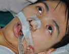 Cậu bé 15 tuổi nguy kịch tính mạng chỉ vì một cơn sốt