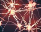Đã tìm ra chìa khóa để ngăn ngừa bệnh Parkinson?