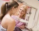 Bạn có cần chụp X-quang tuyến vú?