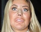 """Gương mặt đáng sợ của người đẹp 22 tuổi """"nghiện dao kéo"""""""