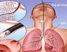 Bệnh viện Bạch Mai công bố nguyên nhân tử vong ca nội soi phế quản