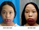Hành trình 16 năm tìm lại nụ cười của nữ sinh nghèo dị tật bẩm sinh