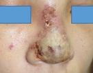 Hà Nội: 5 ngày sau tiêm chất làm đầy, cô gái có ổ mủ trên mũi