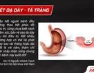 Sự thật ít ai biết để tránh tái phát viêm loét dạ dày