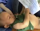 Thương cháu bé 10 tháng tuổi bụng to như cái trống