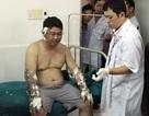"""Tuyên 6 năm tù cho đối tượng dùng """"bom xăng"""" tấn công người khác"""