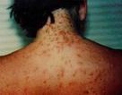 Tắm biển bị rộp ngứa da: Căn do, dự phòng và xử lý