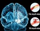Cảnh báo: Nguy cơ đột quỵ ở người cao huyết áp mùa World cup