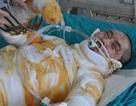 Chàng trai 18 tuổi bỏng nặng vì nướng cá bằng cồn