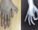 Giải cứu những đôi bàn tay dị tật nhờ y học hiện đại