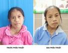 Phép màu xuất hiện sau 20 năm cuộc đời của cô gái trẻ Thái Nguyên