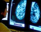 Bệnh nhân ung thư điều trị bằng thuốc bổ sung dễ tử vong hơn