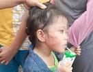 TPHCM: Bàng hoàng cô giáo mầm non tát thâm mặt bé gái 5 tuổi