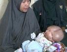 Em bé hai mặt chào đời ở Indonesia