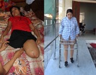 Điều kỳ diệu đến với nữ sinh vừa tốt nghiệp đại học bị xe cán cụt đôi chân