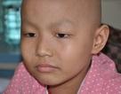 Đau đáu ánh mắt cậu bé 7 tuổi bị ung thư xương