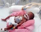 Kỳ diệu ca mổ tim khẩn cấp cứu bé sinh non nặng 0,6kg