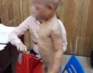 Cha dượng ra tay đánh bé 3 tuổi dã man