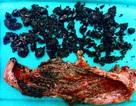 Phẫu thuật thành công ca viêm túi mật trước nguy cơ hoại tử