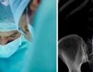 Tưởng bị ung thư, hóa ra kéo dài 15cm nằm trong bụng 6 tháng
