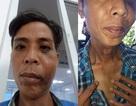 Dân tố bị Trưởng công an xã đánh phải nhập viện
