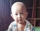 """Thương bé 1 tuổi """"chống chọi"""" với bệnh tim từng ngày"""