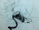 Bệnh nhân trò chuyện với bác sĩ khi can thiệp mạch máu não