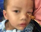Bé 4 tuổi bị cây xiên thịt đâm thấu hốc mắt
