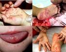 6 trẻ tử vong do tay chân miệng, Bộ Y tế yêu cầu khẩn tăng cường chống dịch