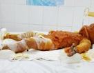 Cháu bé 20 tháng tuổi bị bỏng nặng đã tử vong