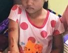 """Bé gái nghi bị cha, mẹ kế dí sắt nung đỏ đã bỏ học và """"biến mất"""""""
