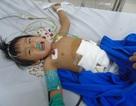 Thương bé 2 tuổi đang nguy kịch khi sớm mất mẹ, cha lại bỏ rơi