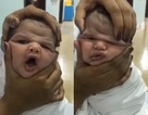 Y tá bị đuổi việc vì đùa nghịch với gương mặt em bé mới sinh