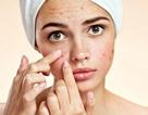 Các món ăn khoái khẩu có thể gây hại cho làn da