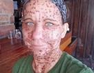 """Người phụ nữ được """"tái sinh"""" sau khi triệt tiêu hơn 6.000 khối u trên cơ thể"""