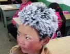 """""""Phép màu"""" đến với bé trai tóc đóng băng vượt 5km tới trường"""