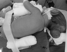 Phẫu thuật cứu bé 5 ngày tuổi bị thoát vị màng não