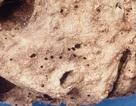 Xác ướp 400 năm tuổi làm thay đổi hiểu biết về bệnh viêm gan B