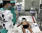 Ngã vào mảnh sành, bé gái 30 tháng tuổi bị đứt động mạch cổ