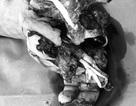 Lại nổ bình ga mini khi ăn lẩu, bệnh nhân nát bét tay không thể cứu vãn