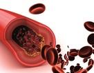 Thiếu máu cơ tim thầm lặng và những cách để giảm thiểu rủi ro
