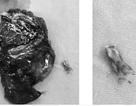 Ho ồng ộc cả cốc máu, bệnh nhân bất ngờ phát hiện mảnh xương găm vào phổi