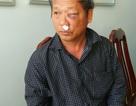 Phóng viên VTV bị các thanh niên lạ mặt tấn công trong quán ăn sáng