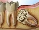Răng khôn, vì sao phải nhổ bỏ?