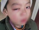 Lạng Sơn: Phụ huynh tố giáo viên dùng thước kẻ đánh học sinh lớp 1 đến hỏng mắt