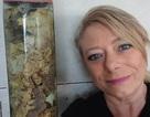 Chồng qua đời vì nhiễm trùng, vợ giữ lại ruột để làm kỷ niệm