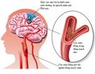 Những cách giúp người bệnh rung nhĩ sống lâu, sống khỏe hơn